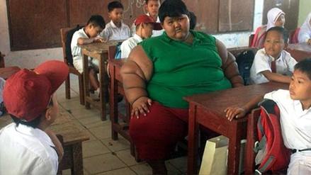 Así luce el niño más obeso del mundo luego de bajar varios kilos